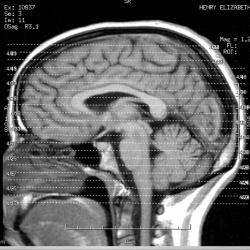 Brain image courtesy of Liz Henry