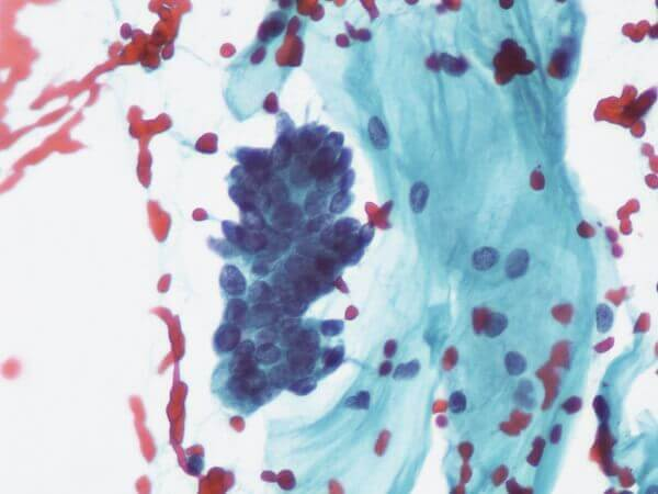 A photo of a typical glandular cells