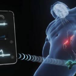 Screenshot from video clip demonstrating Morari wearable product for treating PE